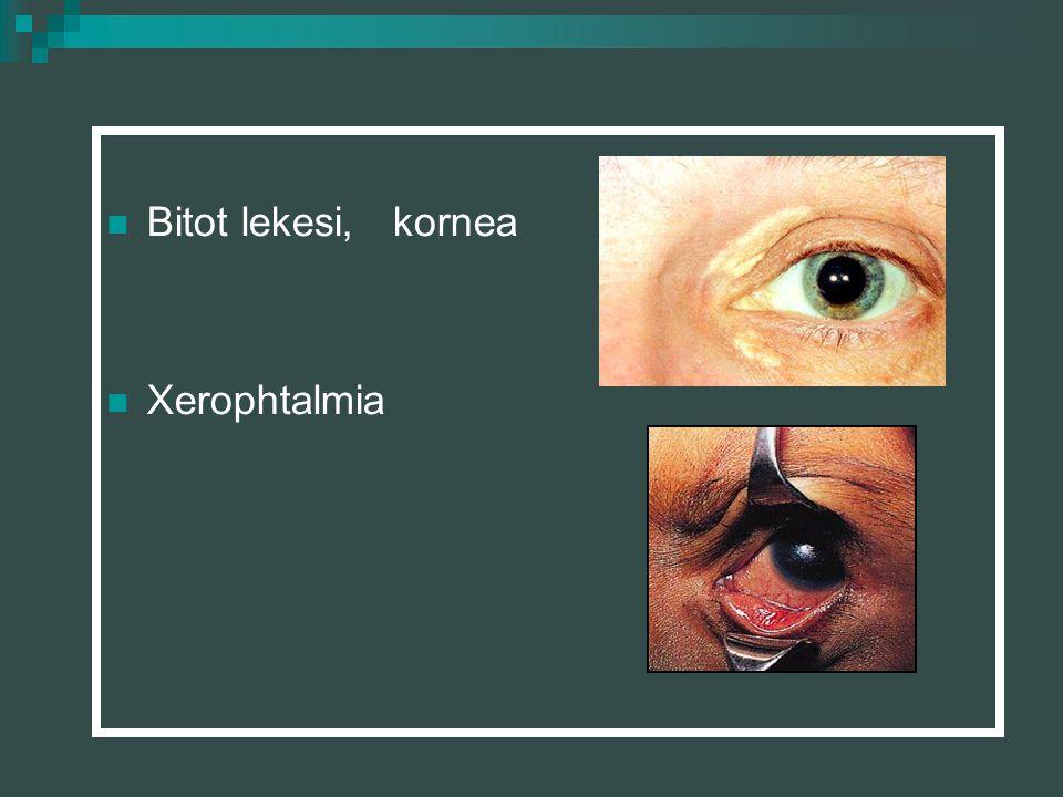 Bitot lekesi, kornea Xerophtalmia