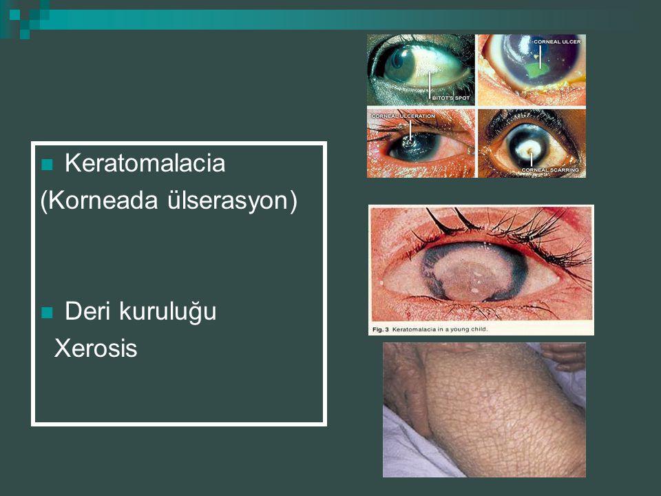 Keratomalacia (Korneada ülserasyon) Deri kuruluğu Xerosis