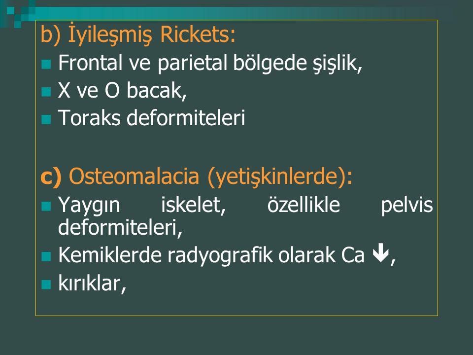 c) Osteomalacia (yetişkinlerde):