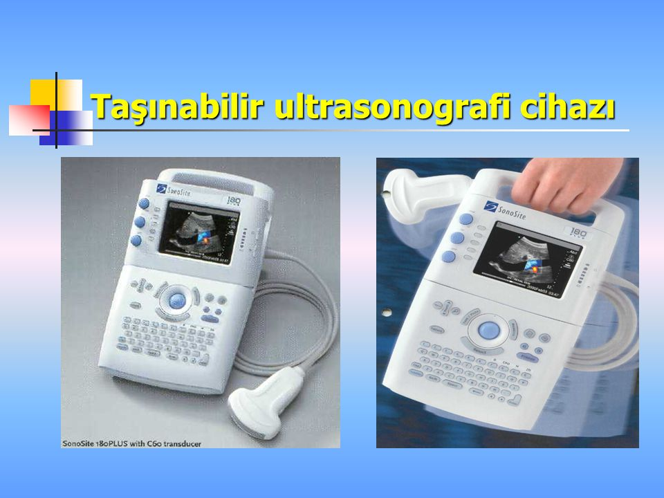 Taşınabilir ultrasonografi cihazı