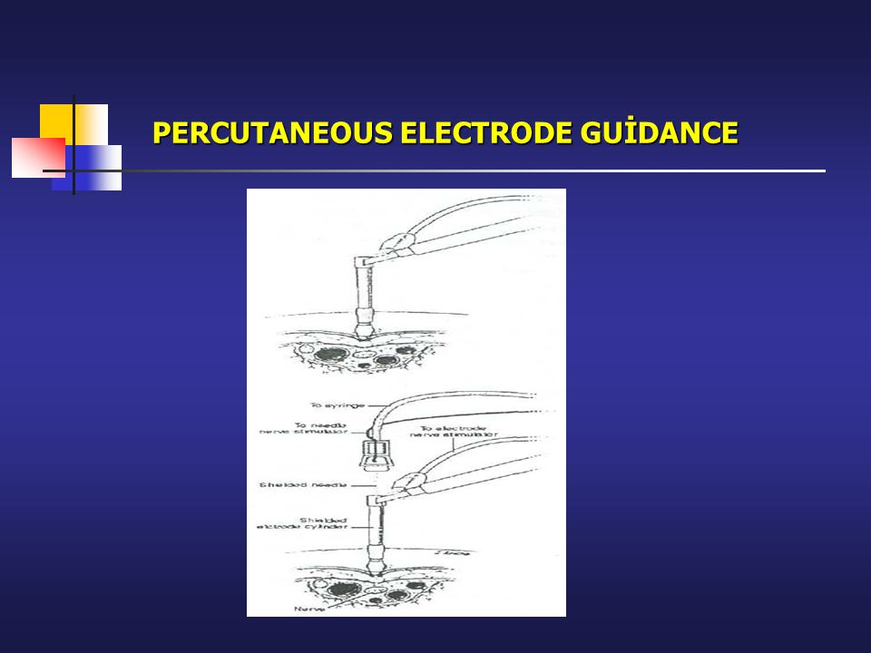 PERCUTANEOUS ELECTRODE GUİDANCE