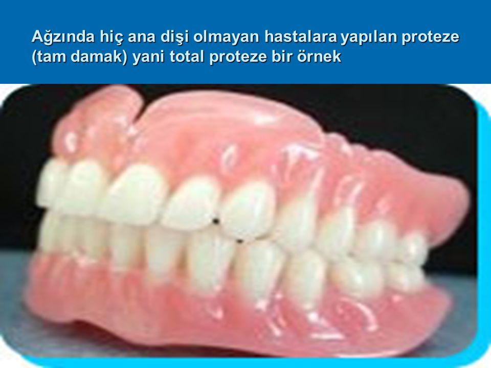Ağzında hiç ana dişi olmayan hastalara yapılan proteze (tam damak) yani total proteze bir örnek
