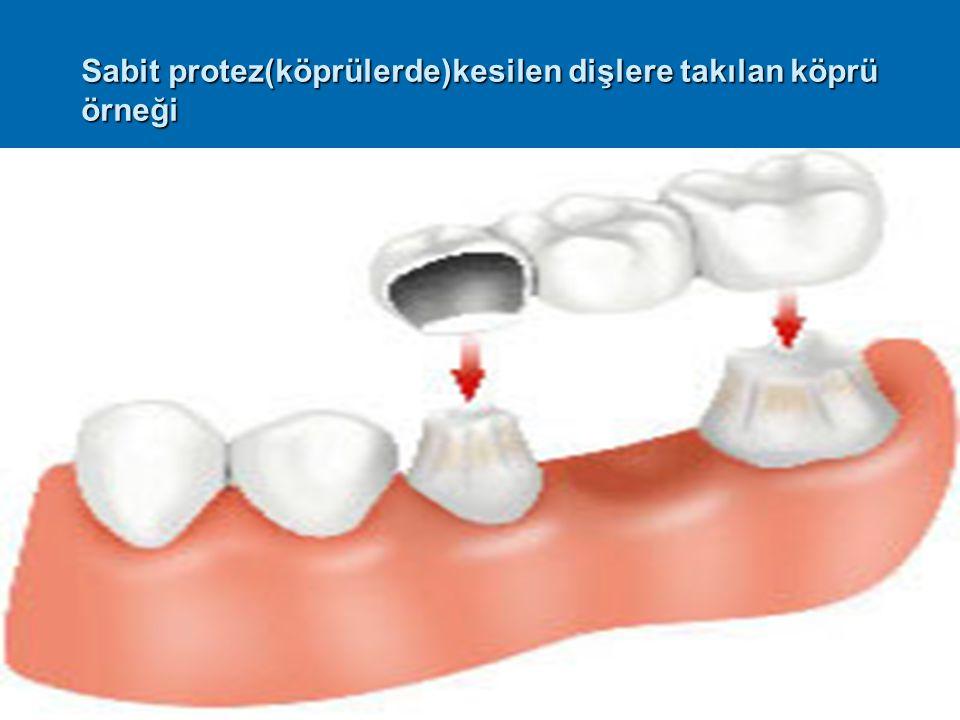 Sabit protez(köprülerde)kesilen dişlere takılan köprü örneği