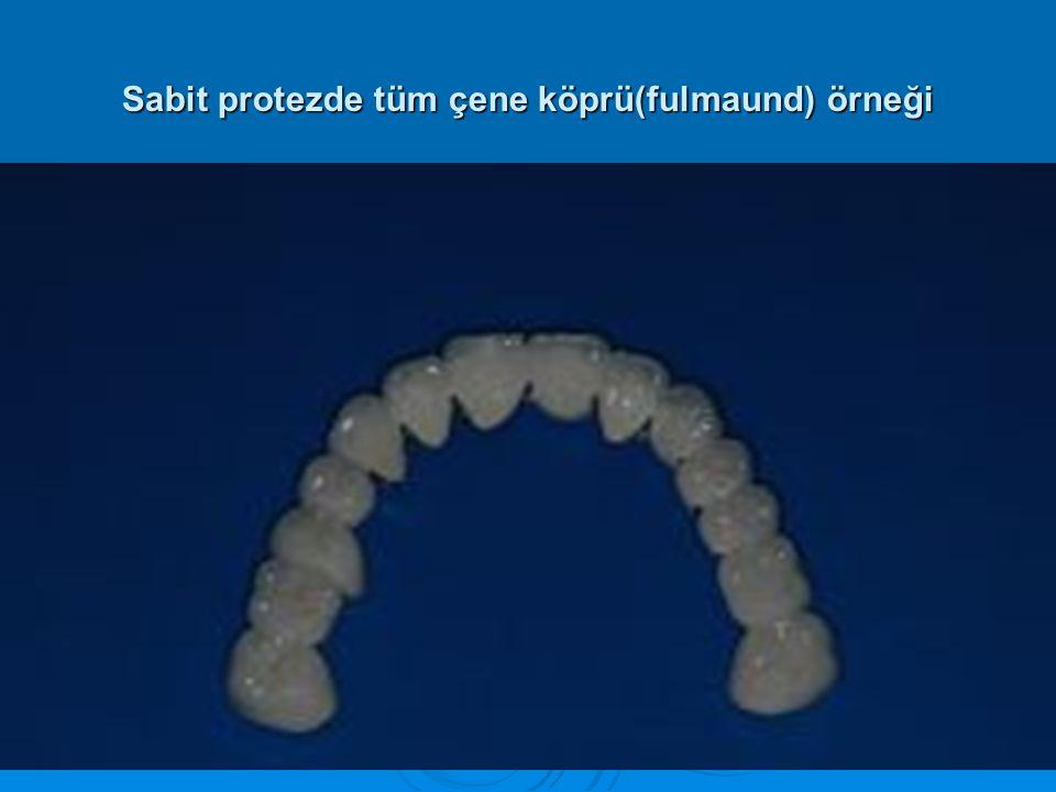 Sabit protezde tüm çene köprü(fulmaund) örneği