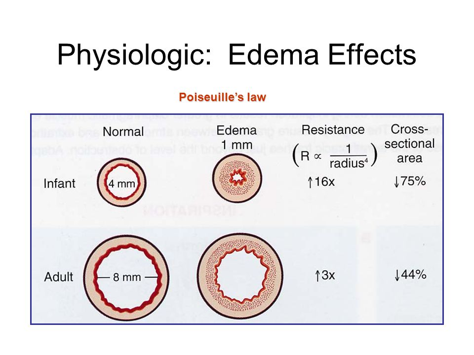 Physiologic: Edema Effects