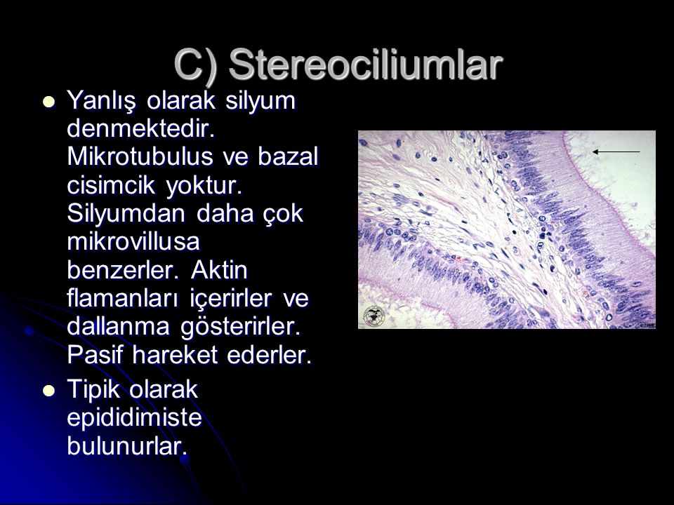 C) Stereociliumlar