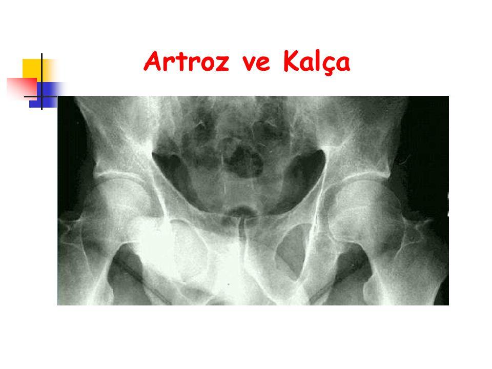 Artroz ve Kalça
