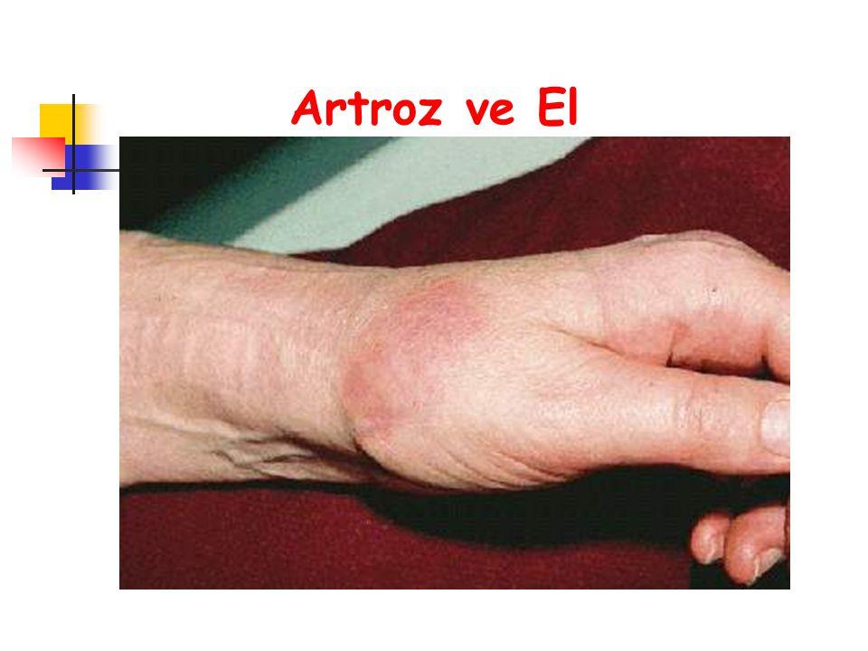 Artroz ve El