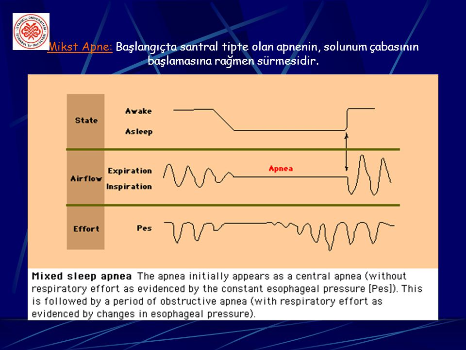 Mikst Apne: Başlangıçta santral tipte olan apnenin, solunum çabasının başlamasına rağmen sürmesidir.