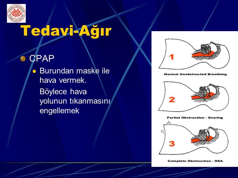 Tedavi-Ağır CPAP Burundan maske ile hava vermek.
