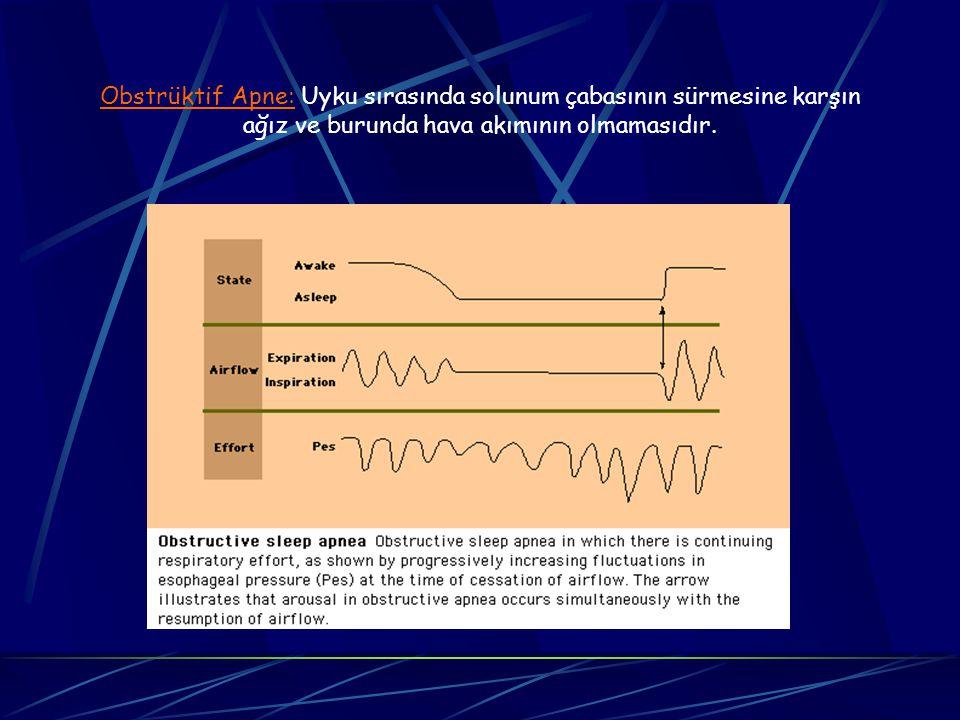 Obstrüktif Apne: Uyku sırasında solunum çabasının sürmesine karşın ağız ve burunda hava akımının olmamasıdır.