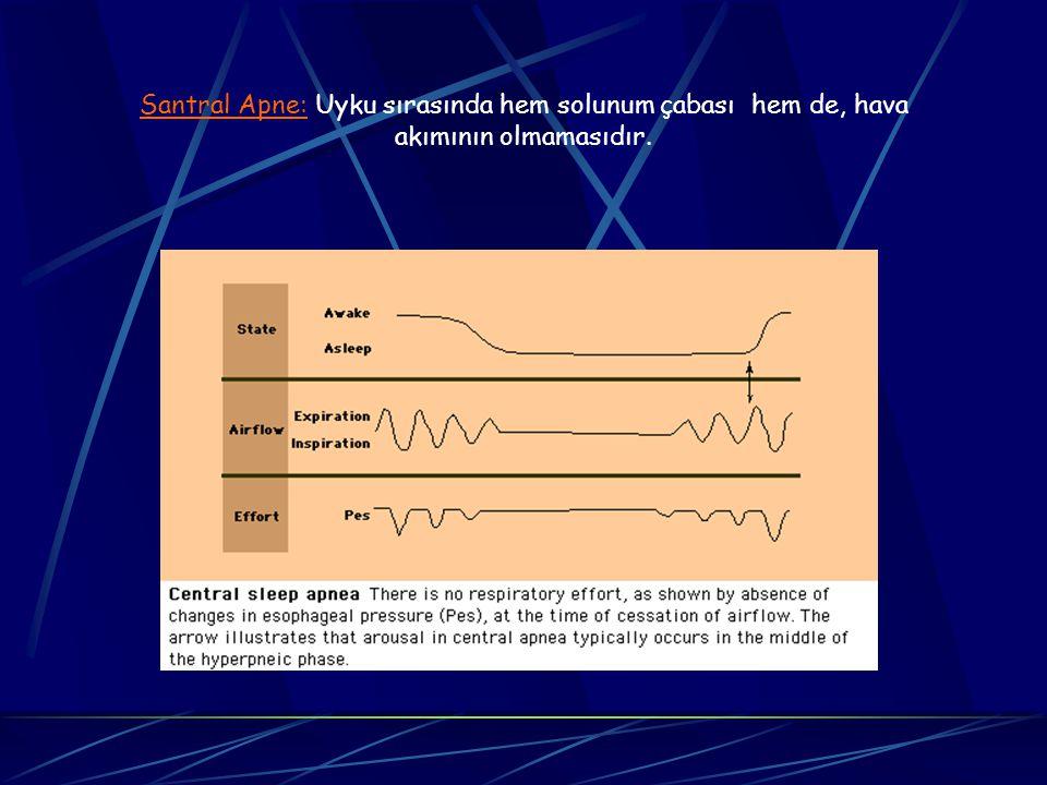 Santral Apne: Uyku sırasında hem solunum çabası hem de, hava akımının olmamasıdır.