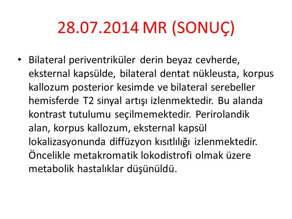 28.07.2014 MR (SONUÇ)