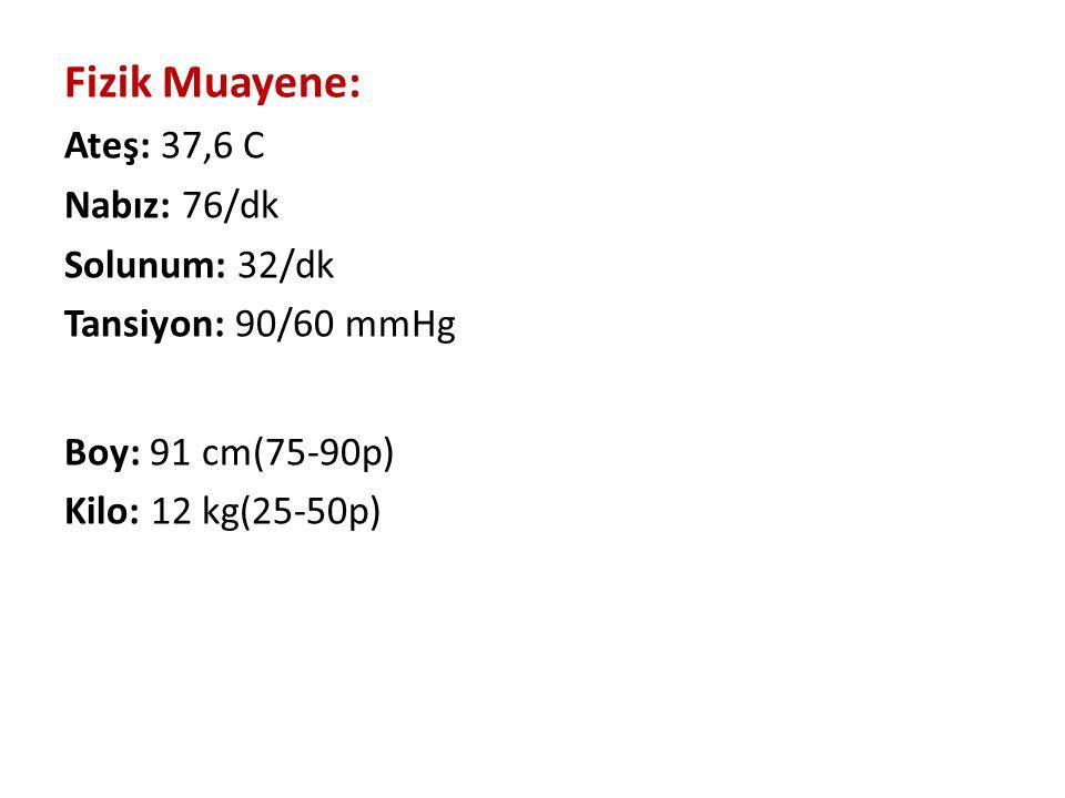 Fizik Muayene: Ateş: 37,6 C Nabız: 76/dk Solunum: 32/dk