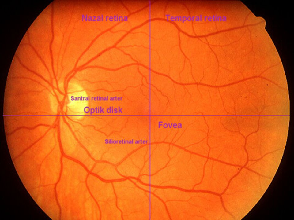Normal optik fundus