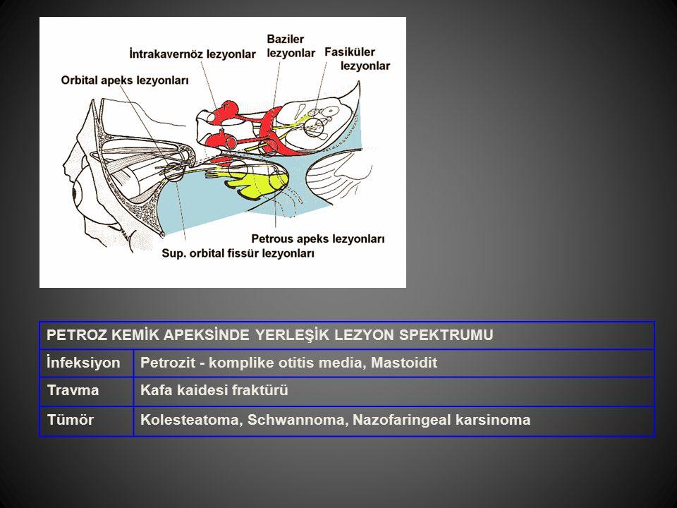 PETROZ KEMİK APEKSİNDE YERLEŞİK LEZYON SPEKTRUMU