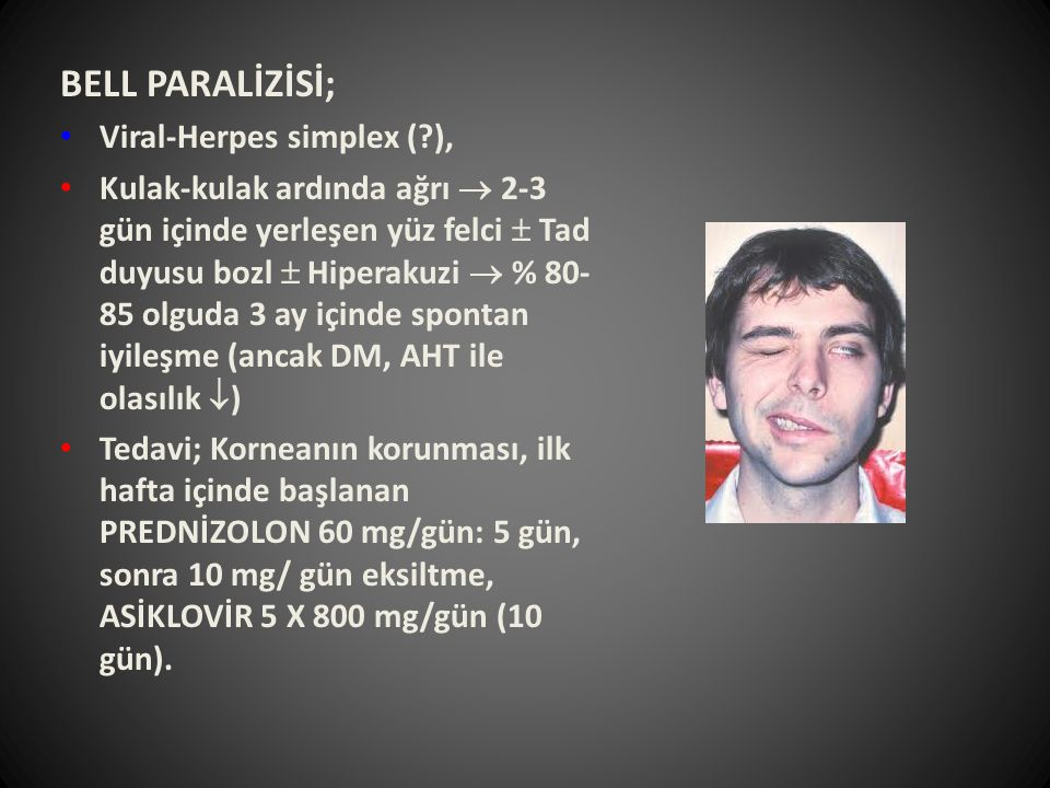 BELL PARALİZİSİ; Viral-Herpes simplex ( ),
