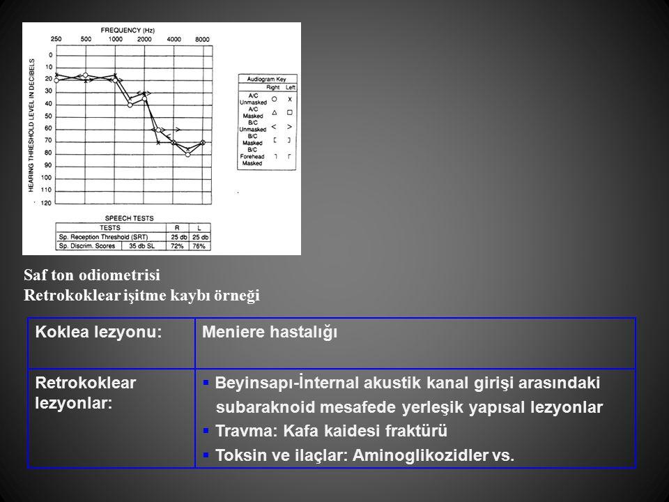 Saf ton odiometrisi Retrokoklear işitme kaybı örneği