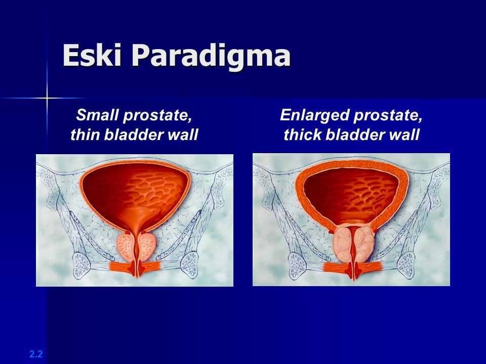 Eski Paradigma Small prostate, thin bladder wall Enlarged prostate,