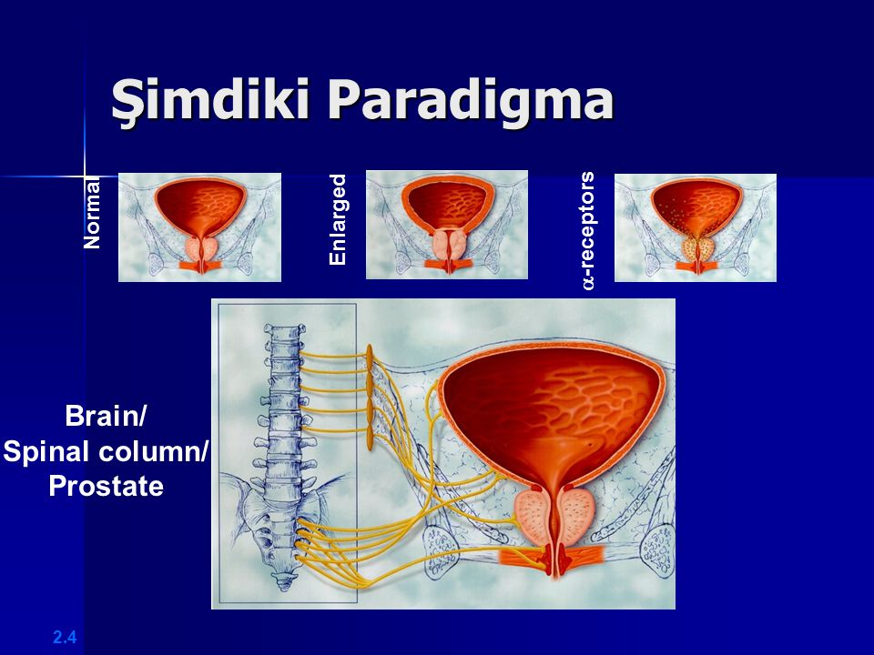 Brain/ Spinal column/ Prostate