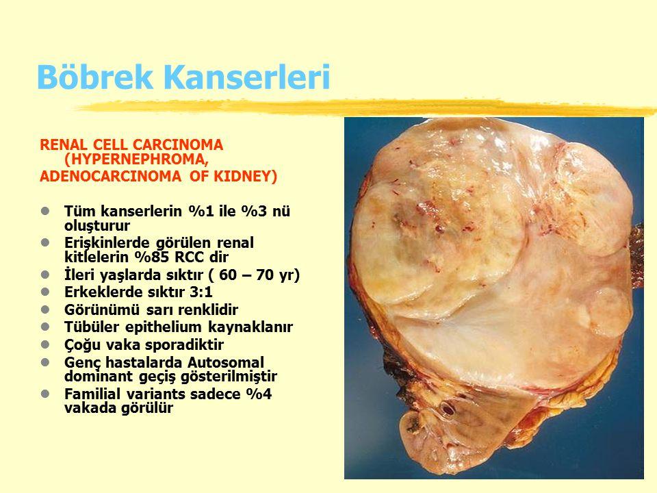 Böbrek Kanserleri RENAL CELL CARCINOMA (HYPERNEPHROMA,