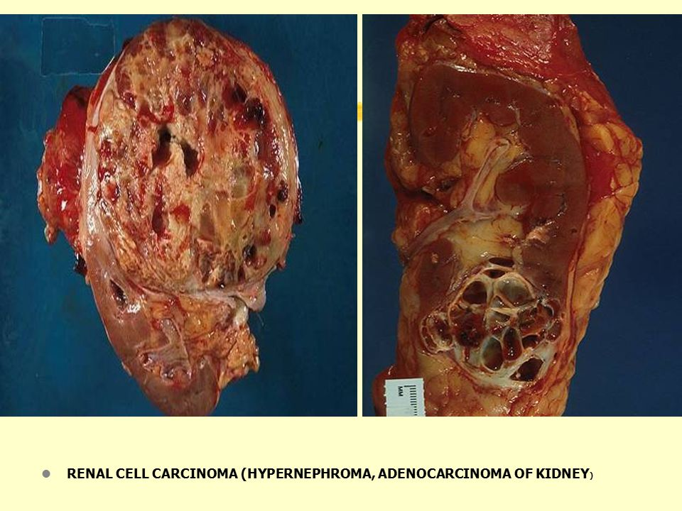 RENAL CELL CARCINOMA (HYPERNEPHROMA, ADENOCARCINOMA OF KIDNEY)