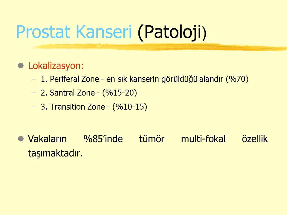 Prostat Kanseri (Patoloji)