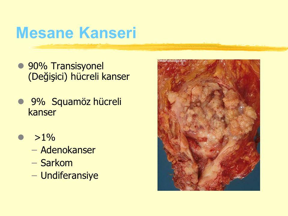 Mesane Kanseri 90% Transisyonel (Değişici) hücreli kanser