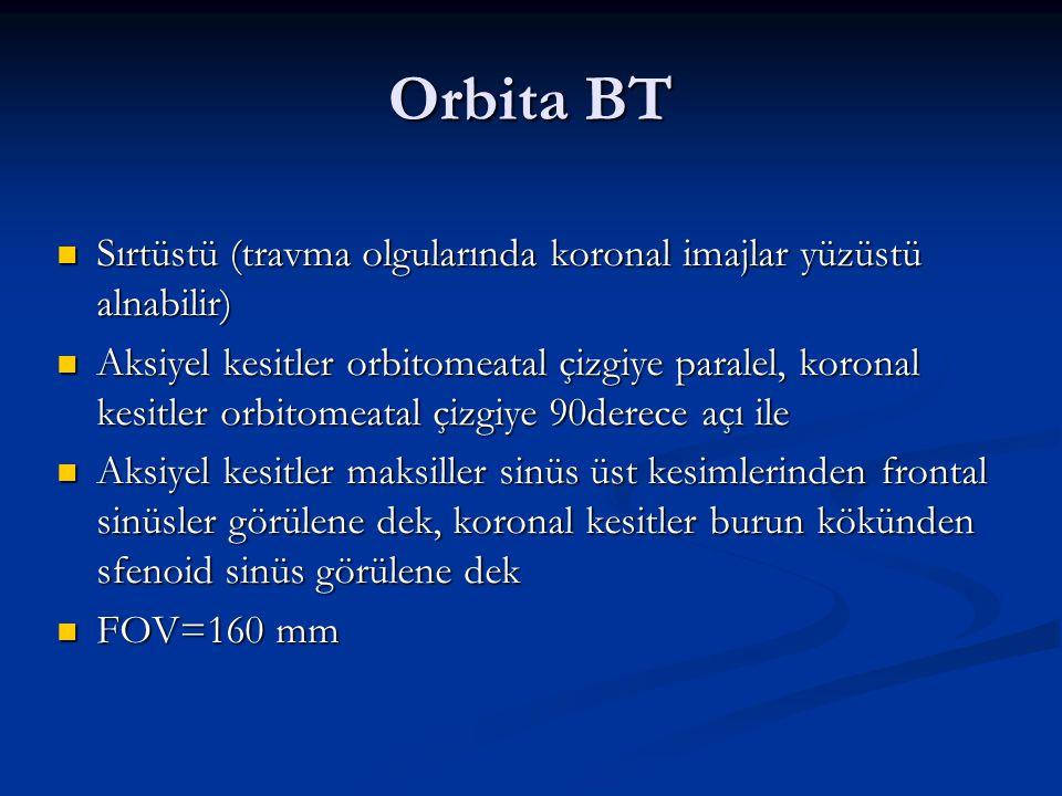 Orbita BT Sırtüstü (travma olgularında koronal imajlar yüzüstü alnabilir)