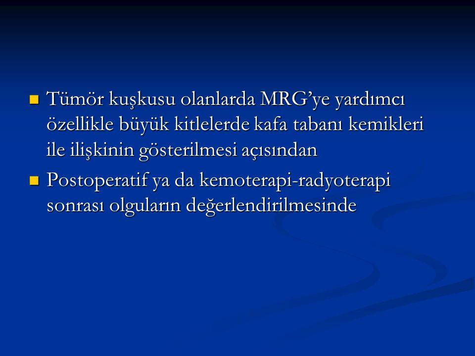 Tümör kuşkusu olanlarda MRG'ye yardımcı özellikle büyük kitlelerde kafa tabanı kemikleri ile ilişkinin gösterilmesi açısından