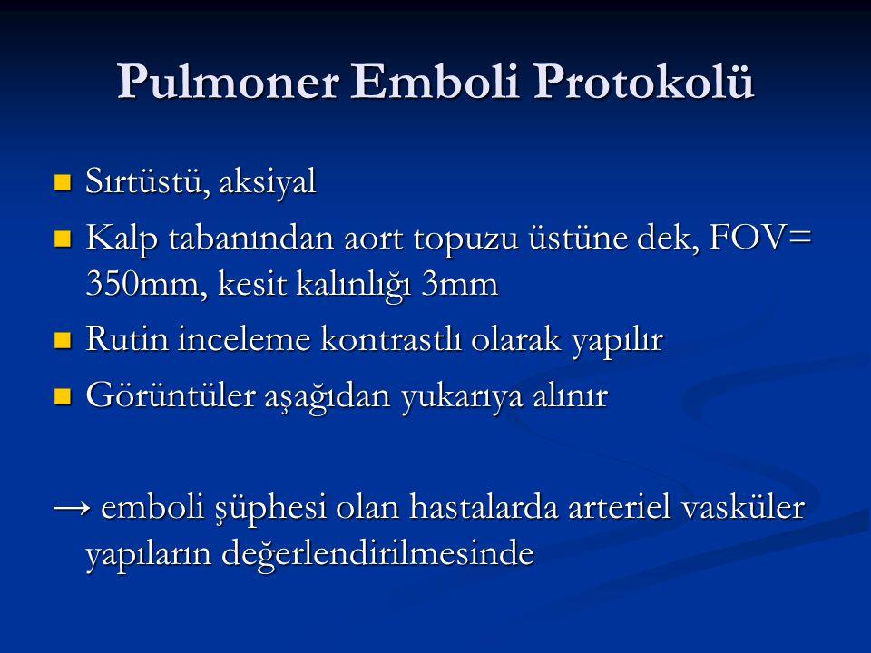 Pulmoner Emboli Protokolü