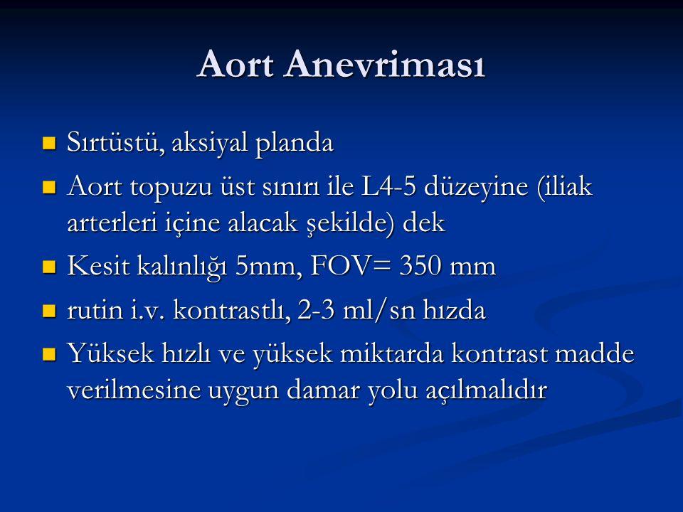 Aort Anevriması Sırtüstü, aksiyal planda