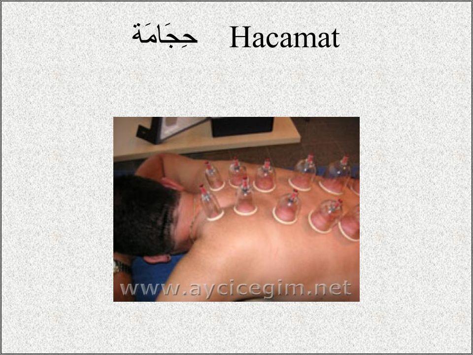 حِجَامَة Hacamat