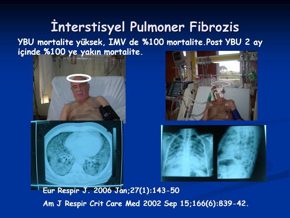 İnterstisyel Pulmoner Fibrozis