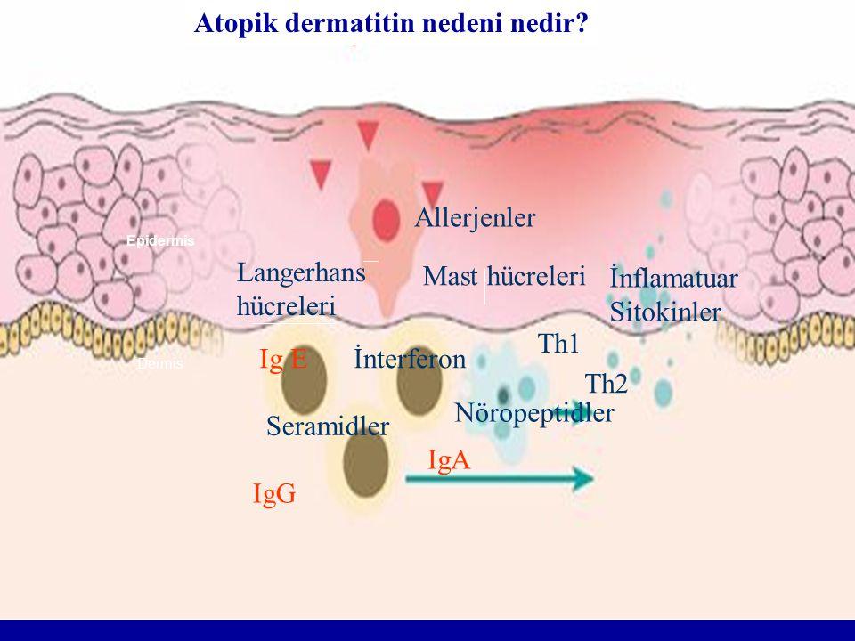 Atopik dermatitin nedeni nedir