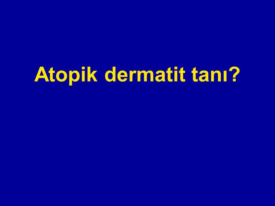 Atopik dermatit tanı