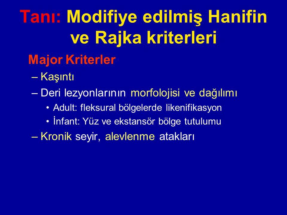 Tanı: Modifiye edilmiş Hanifin ve Rajka kriterleri