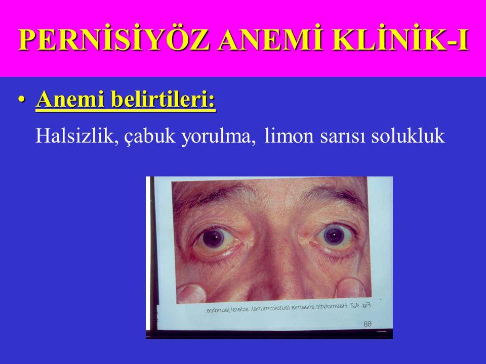 PERNİSİYÖZ ANEMİ KLİNİK-I
