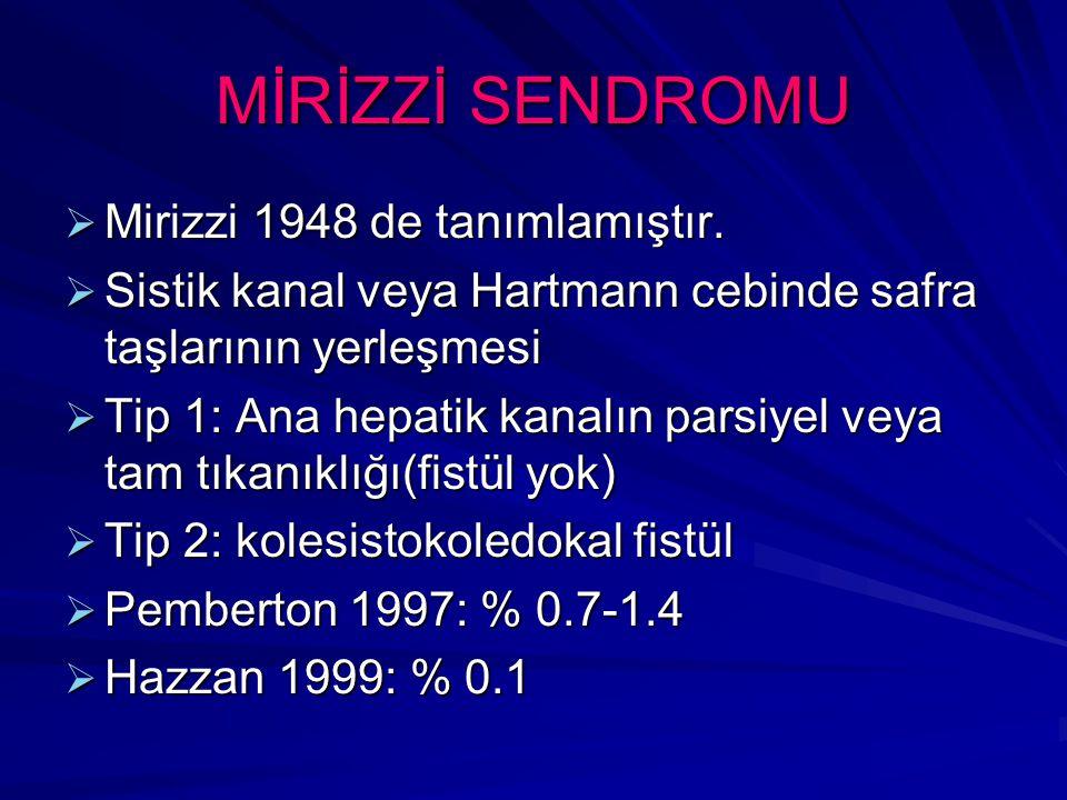 MİRİZZİ SENDROMU Mirizzi 1948 de tanımlamıştır.