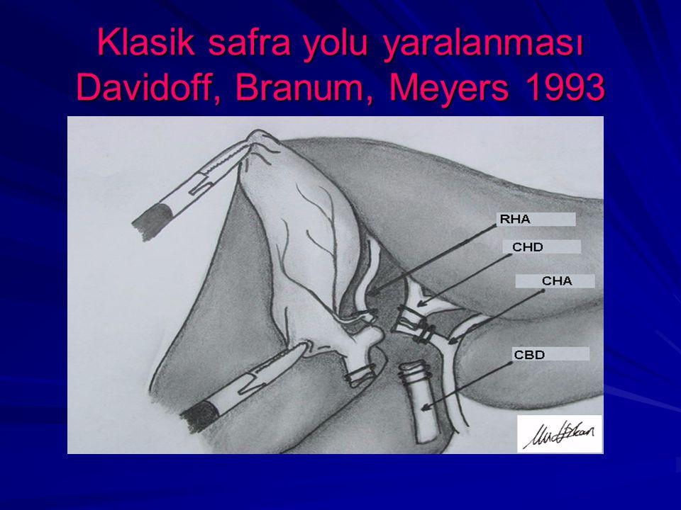 Klasik safra yolu yaralanması Davidoff, Branum, Meyers 1993