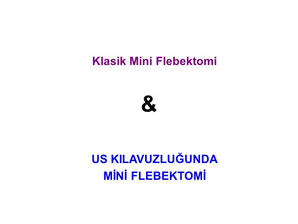 Klasik Mini Flebektomi