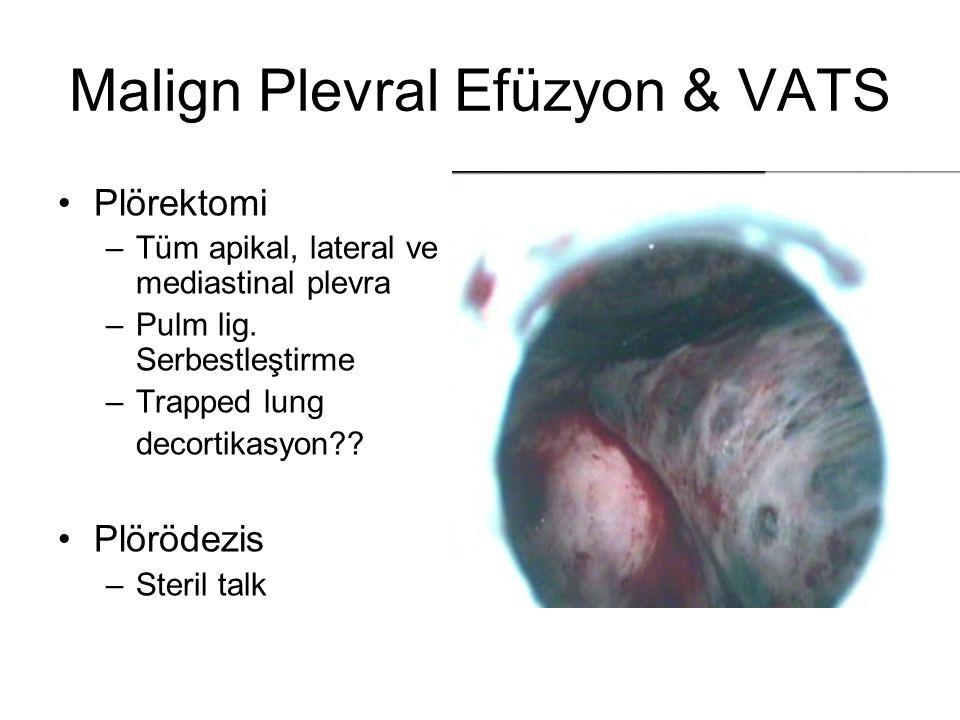 Malign Plevral Efüzyon & VATS