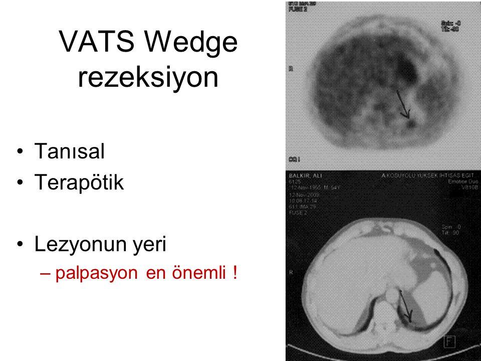 VATS Wedge rezeksiyon Tanısal Terapötik Lezyonun yeri