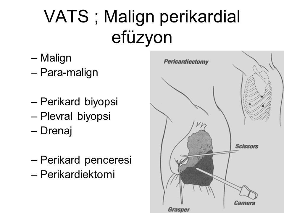 VATS ; Malign perikardial efüzyon