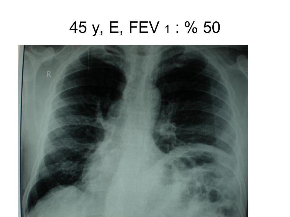 45 y, E, FEV 1 : % 50