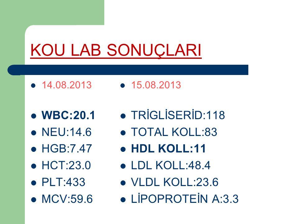 KOU LAB SONUÇLARI WBC:20.1 NEU:14.6 HGB:7.47 HCT:23.0 PLT:433 MCV:59.6