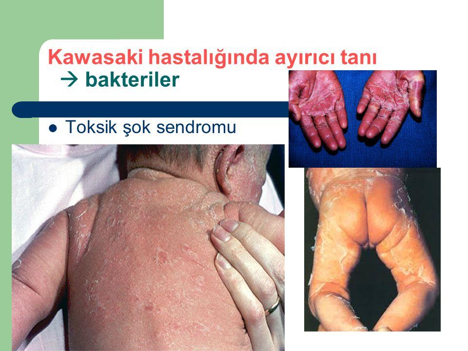 Kawasaki hastalığında ayırıcı tanı  bakteriler
