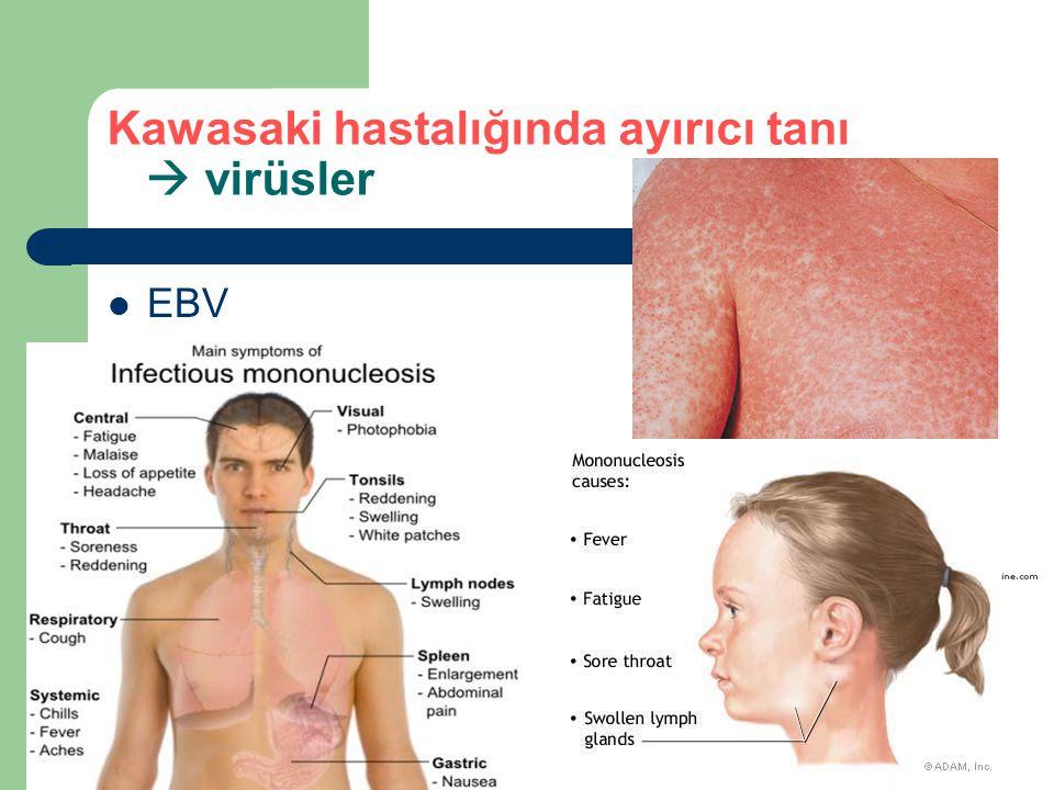 Kawasaki hastalığında ayırıcı tanı  virüsler