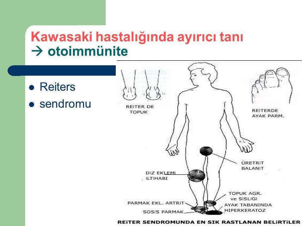 Kawasaki hastalığında ayırıcı tanı  otoimmünite