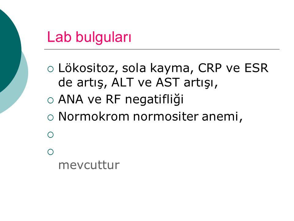 Lab bulguları Lökositoz, sola kayma, CRP ve ESR de artış, ALT ve AST artışı, ANA ve RF negatifliği.